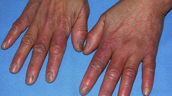 Đầu ngón tay bị sưng nhức có nguy hiểm cho sức khỏe không ?