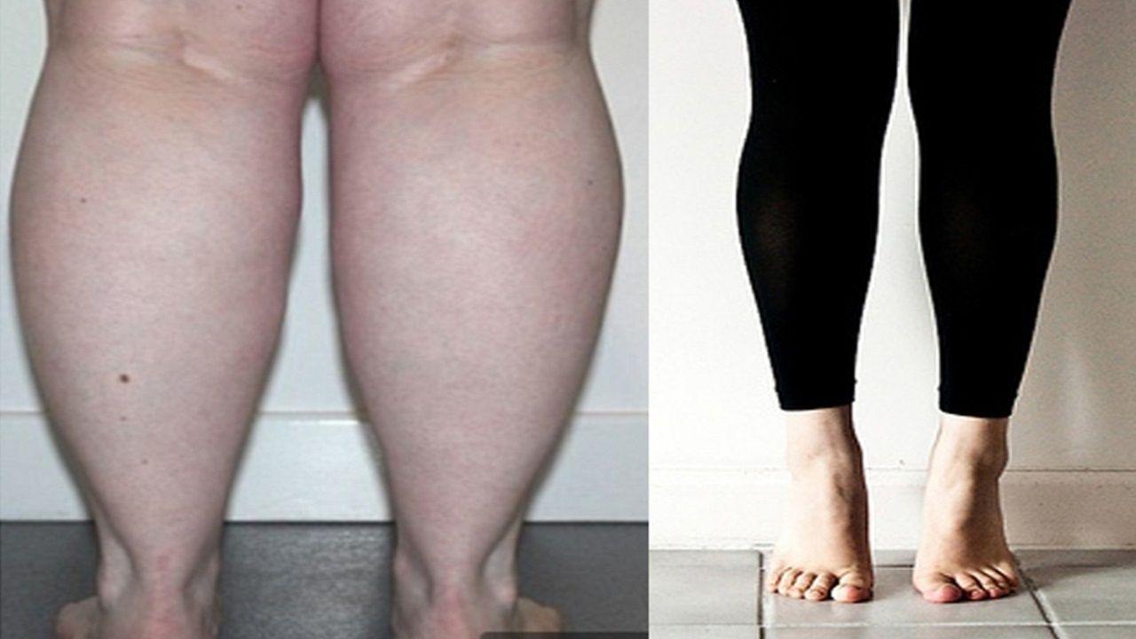 Lý do nào khiến cho bắp chân càng ngày càng to